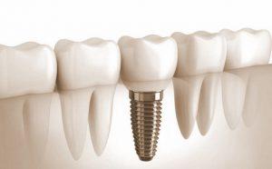 Протезирование зубов относится к лечению thumbnail